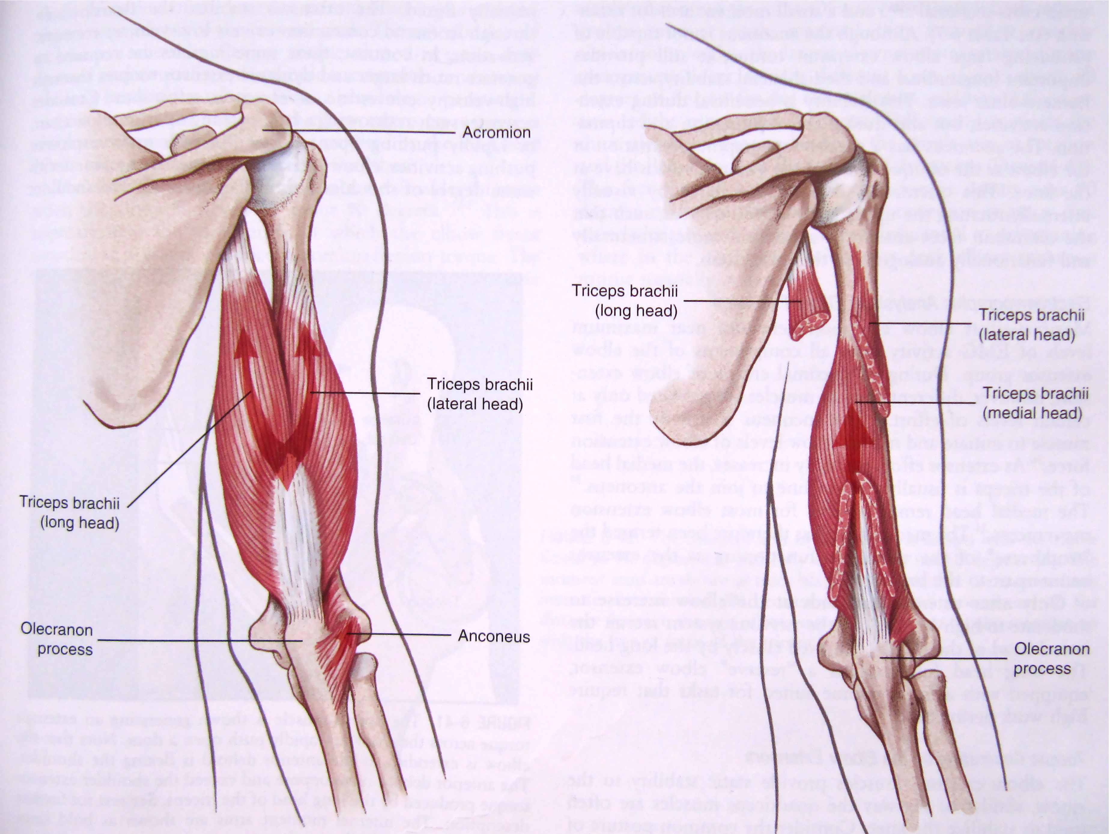 How to Heal Tricep Tendonitis - Overhaul Training